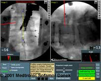 Computer image of spine surgery