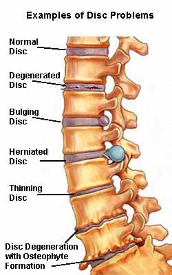 Examples of degenerative disc problems