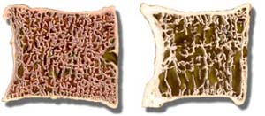 Normal bone vs. Osteoporotic bone