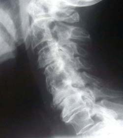 X-ray of Cervical Spine