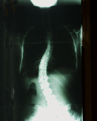 Adult Idiopathic Scoliosis X-ray