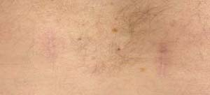 Postoperative minimally invasive surgery scars